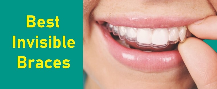 Best Invisible Braces